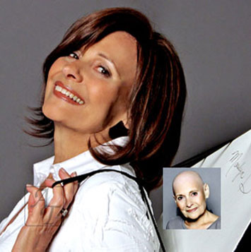 virtuesse female hair loss replacement systems richmond va