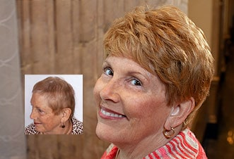 womens female hair loss solutions Richmond Virginia