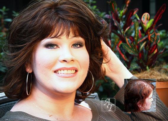 womens hair loss restoration treatment richmond va