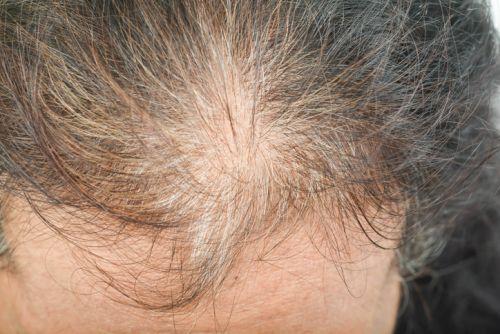 scarring alopecia women richmond va